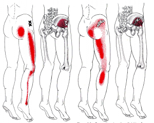 gluteus minimus trigger points yoga anatomy