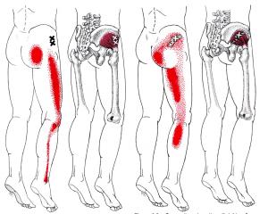 yoganatomy what is the gluteus minimus muscle  yoga anatomy
