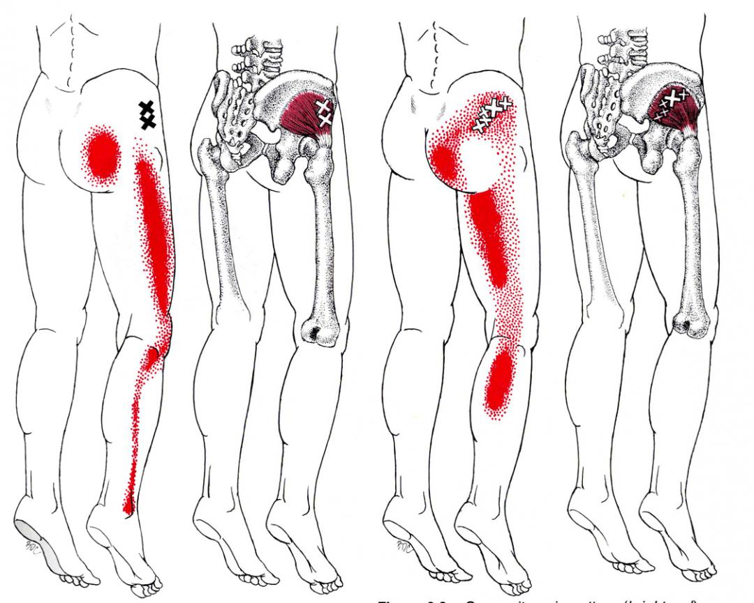gluteus minimus yoga anatomy
