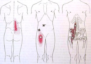 iliopsoas trigger points yoga anatomy