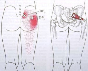 Piriformis Trigger Points