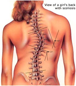 "Featured image for ""Can Yoga Fix Scoliosis?"""