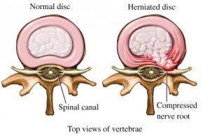 Image source Baker Chiropractic