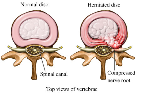 "Featured image for ""Practicing Yoga With A Herniated Disc?"""