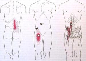 iliopsoas trigger points yoga anatomy