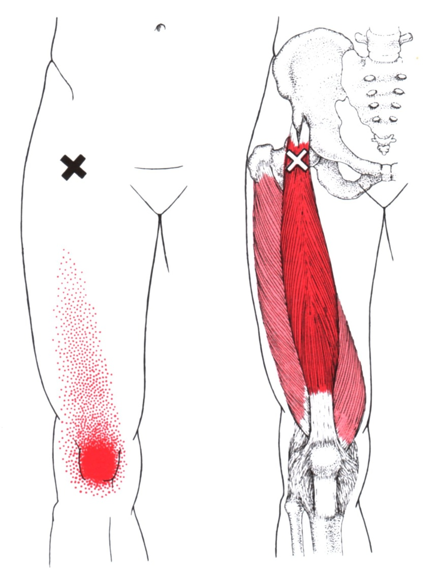 The Quadriceps Muscles...