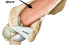 supraspinatus from above