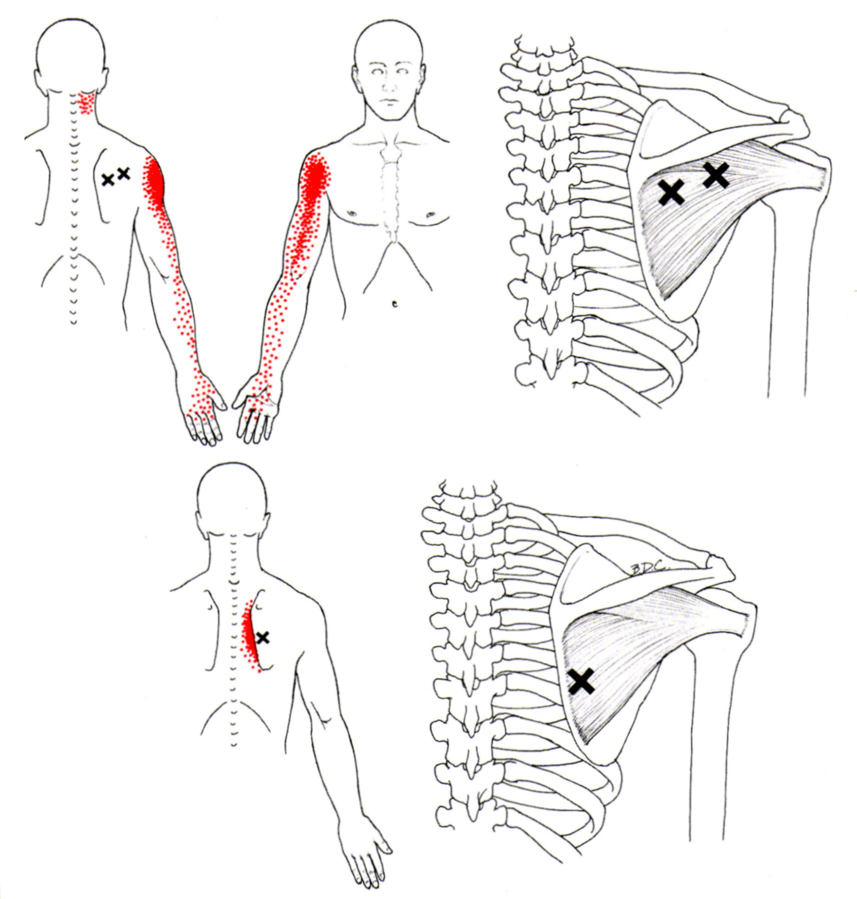 Infraspinatus & Teres Minor - Rotator Cuff - Yoga Anatomy