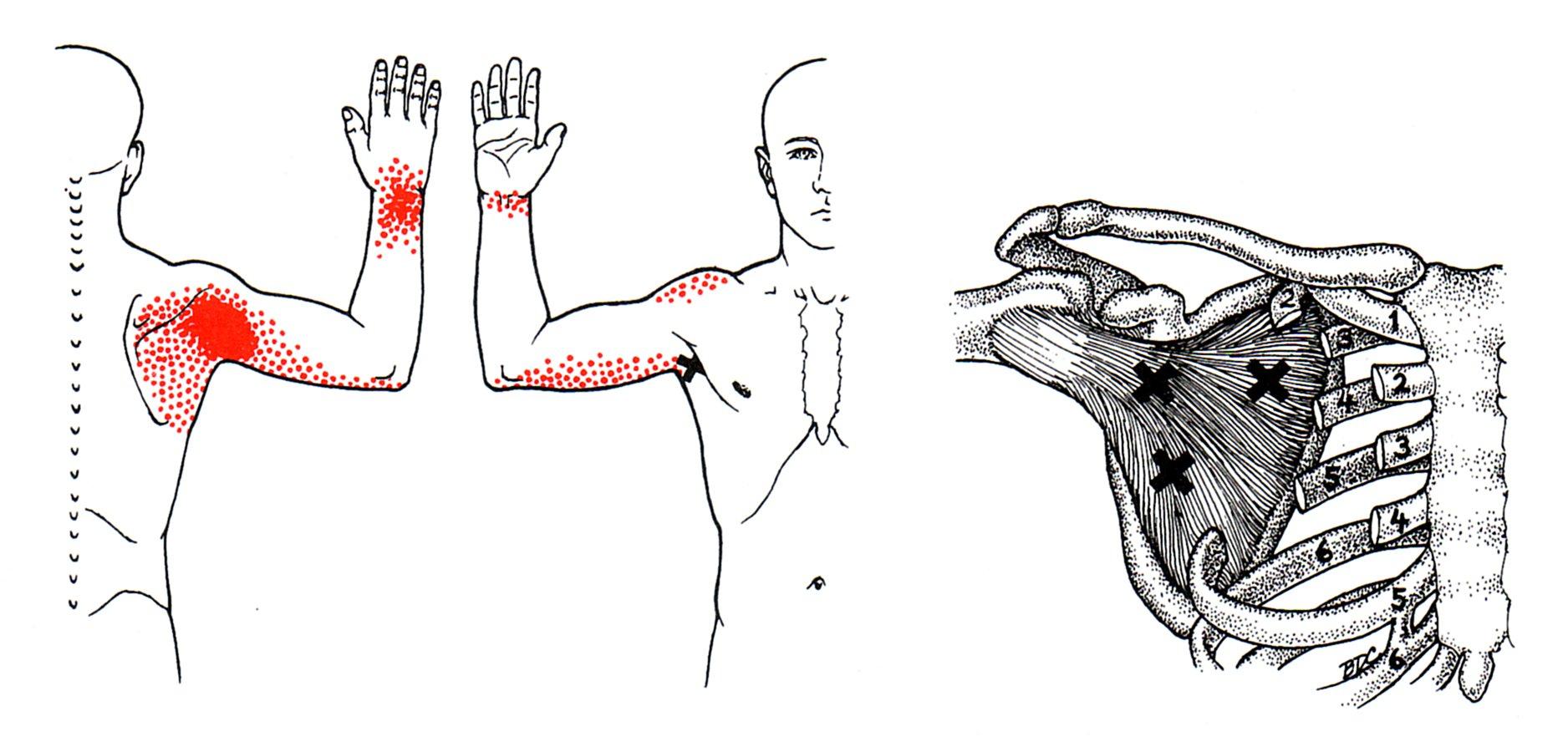 Subscapularis - Rotator Cuff Muscle - Yoganatomy