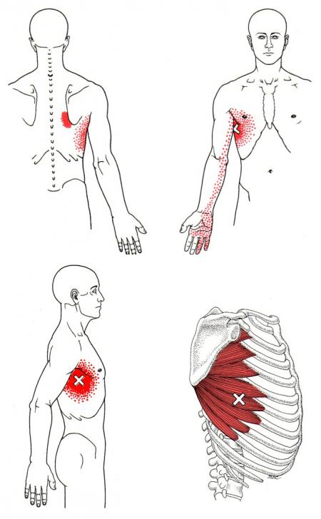 Learn More About Your Serratus Anterior Muscle