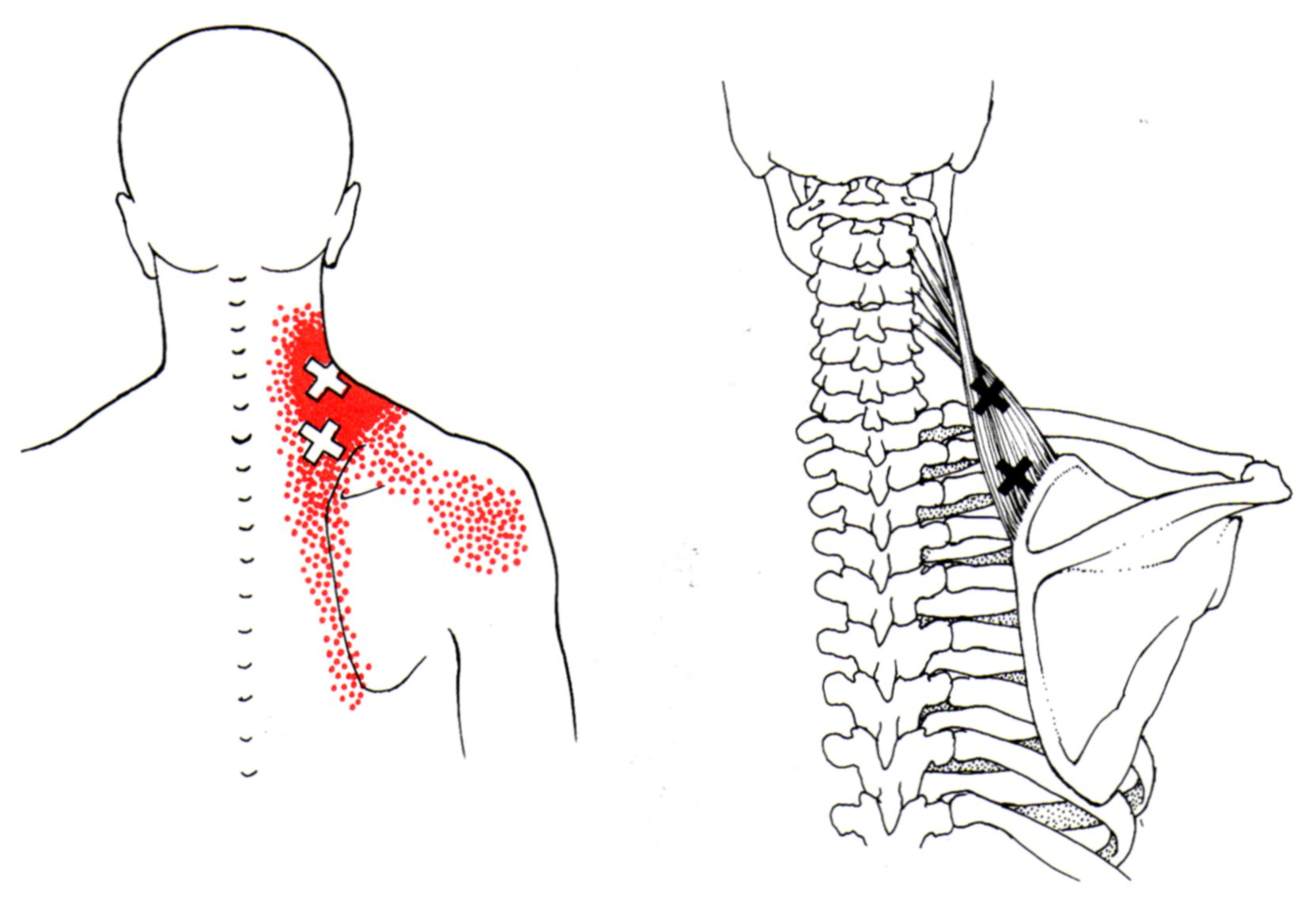 trigger points levator yoga anatomy