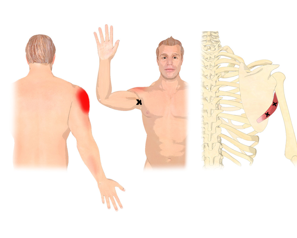 The Teres Major Muscle Trigger Points