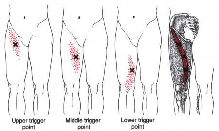 sartorius muscle trigger points