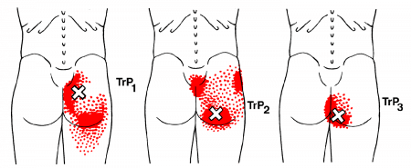 Gluteus maximus muscle trigger points