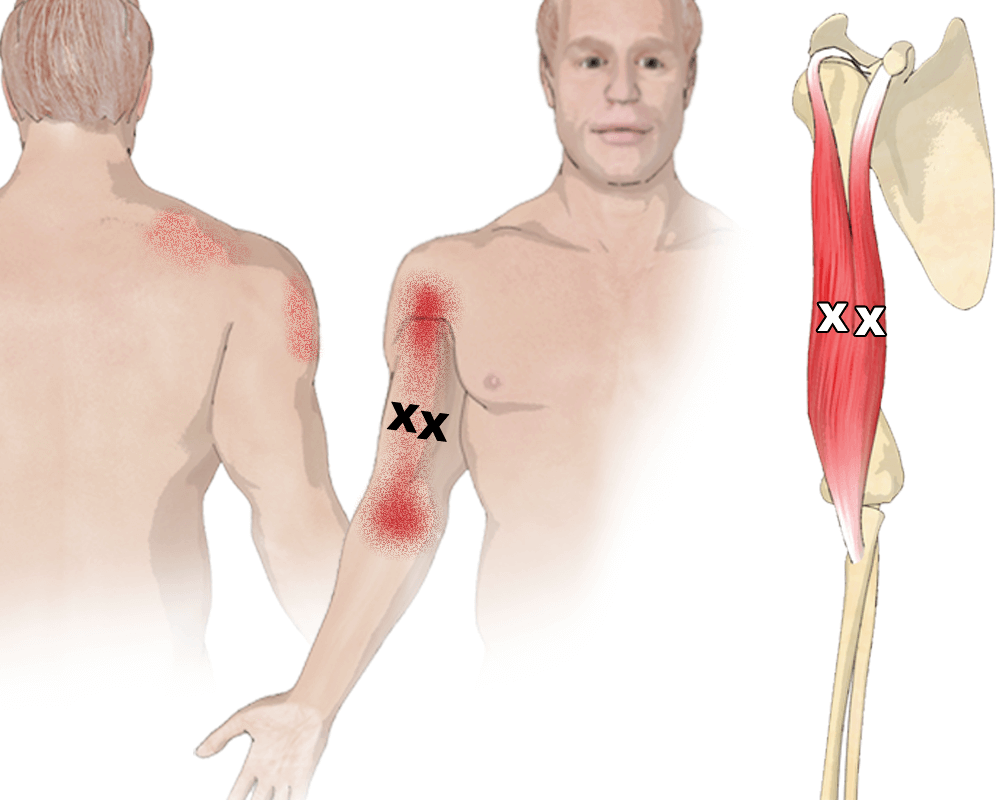 Trigger Points in the Biceps Brachii Muscle