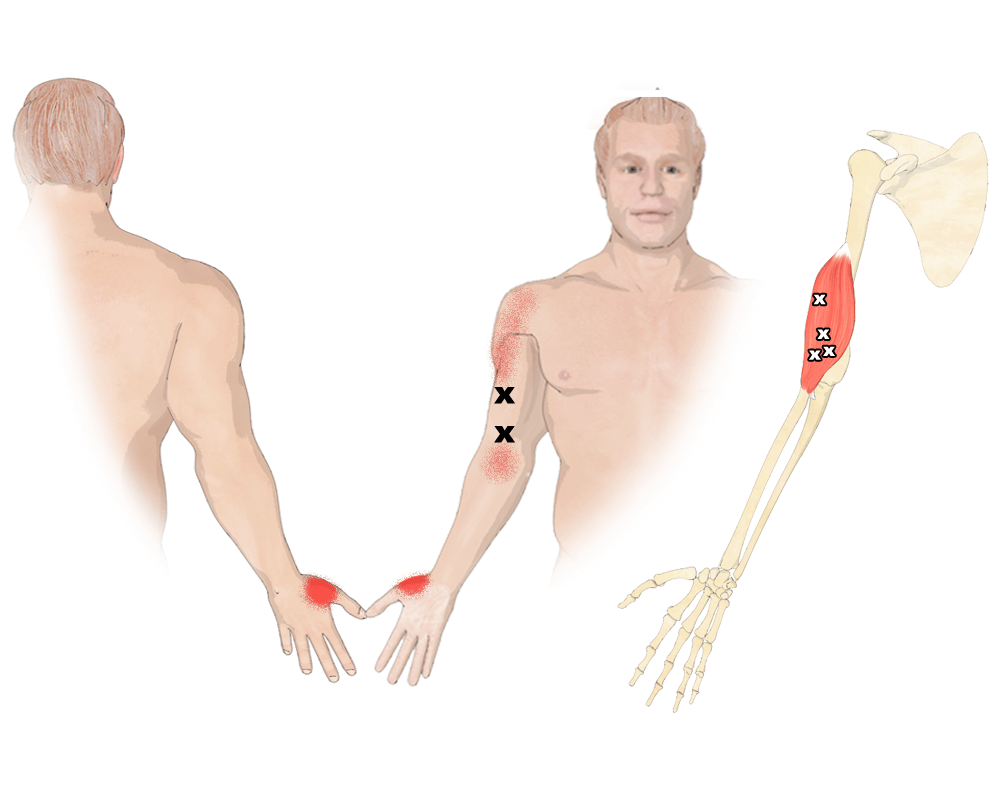 Trigger Points in the Brachialis Muscle