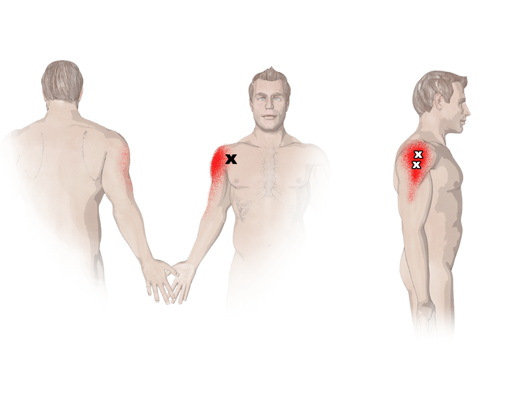 Trigger Points in the Deltoid Muscle