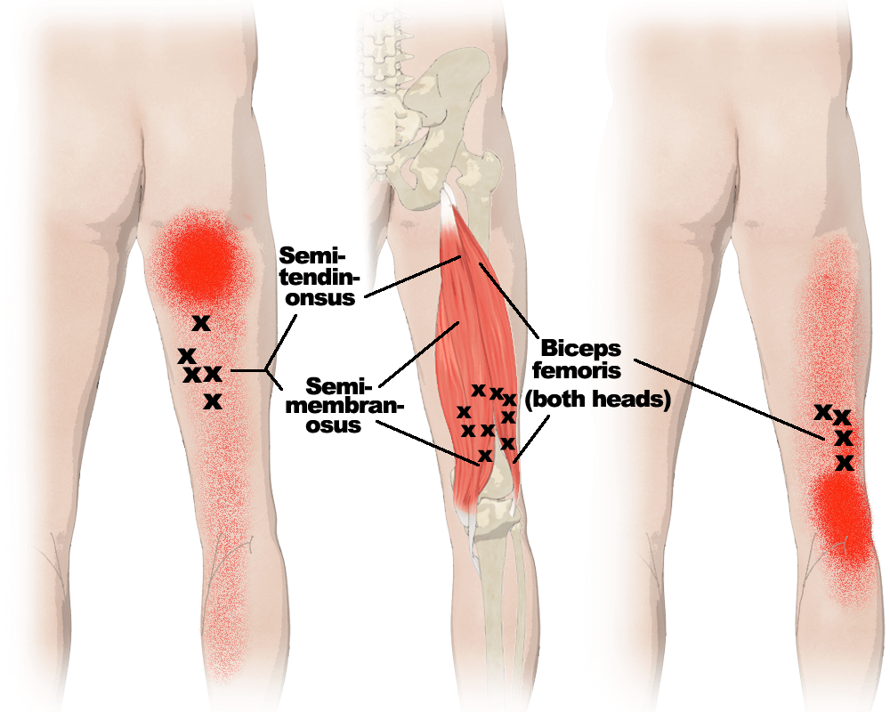 Trigger Points in the Hamstrings Muscles