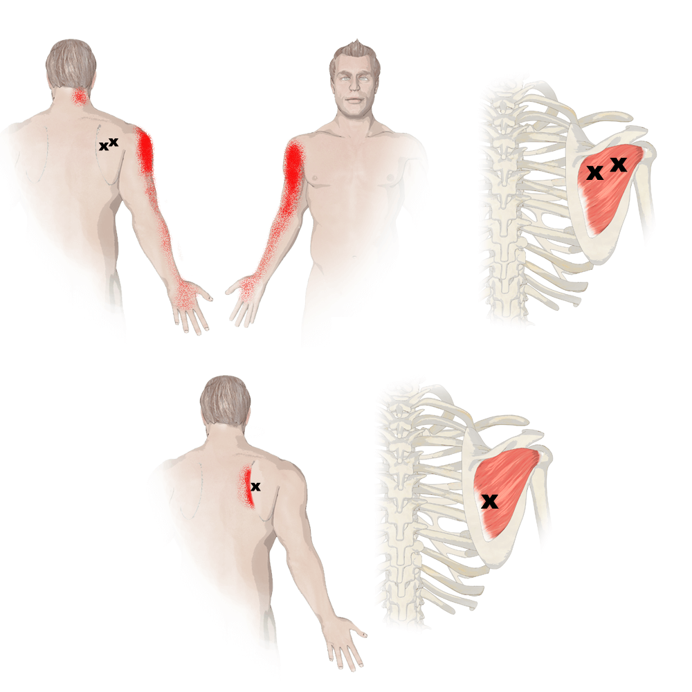 Trigger Points in the Infraspinatus Muscle