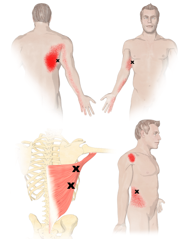 Trigger Points in the Latissimus Dorsi Muscle
