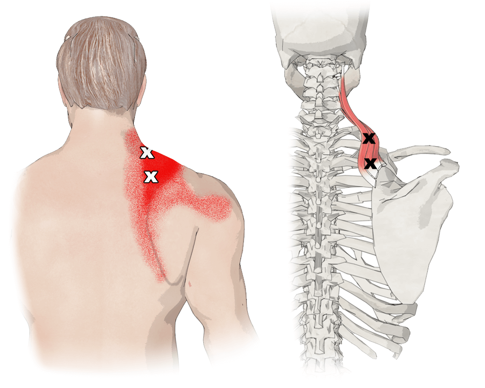 Trigger Points in the Levator Scapulae Muscle