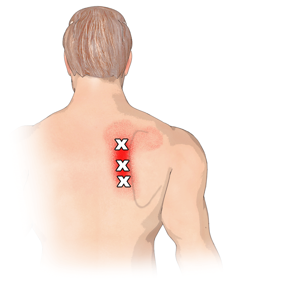 Trigger Points in the Rhomboids Muscle