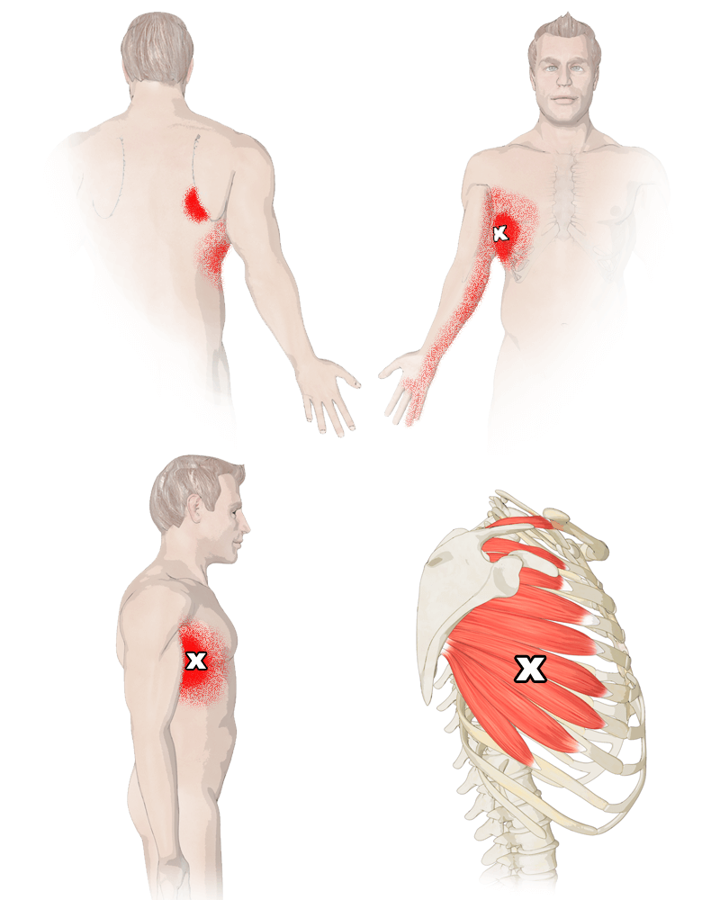 Trigger Points in the Serratus Anterior Muscle