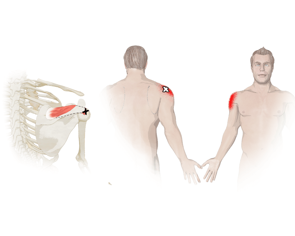 Trigger Points in the Supraspinatus