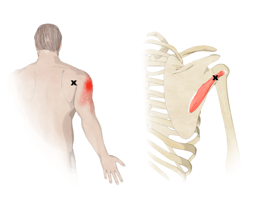 Trigger Points in the Teres Minor Muscle