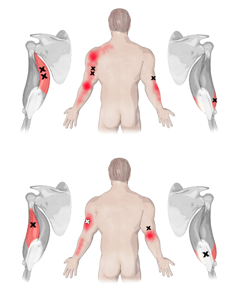 Trigger Points in the Triceps Brachii Muscle