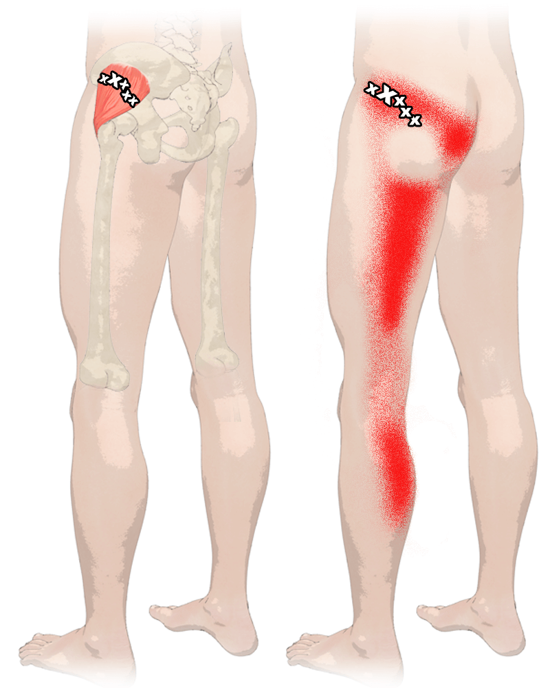 Sit Bone Pain Has More Than One Cause - Updated 2017 - Yoga Anatomy