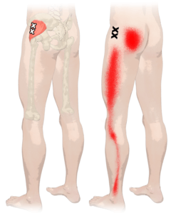 Trigger Points In Gluteus Minimus