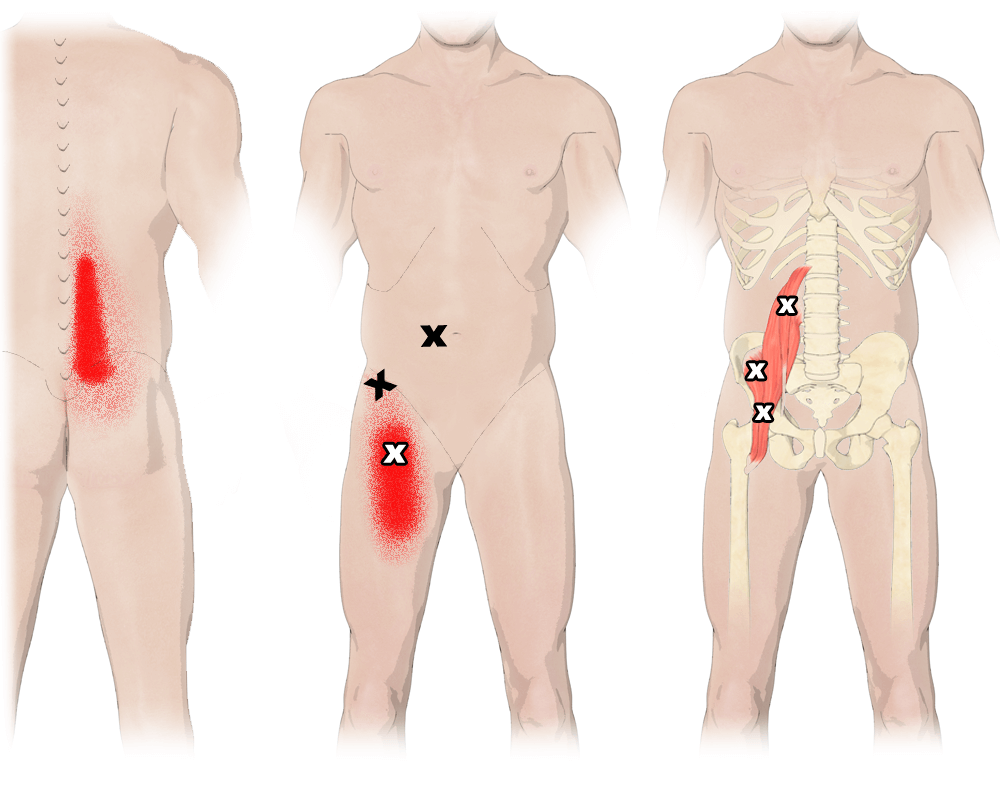 Trigger Points in the Iliopsoas Muscles