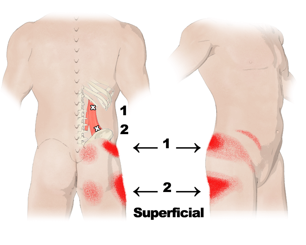 Quadratus Lumborum Trigger Points