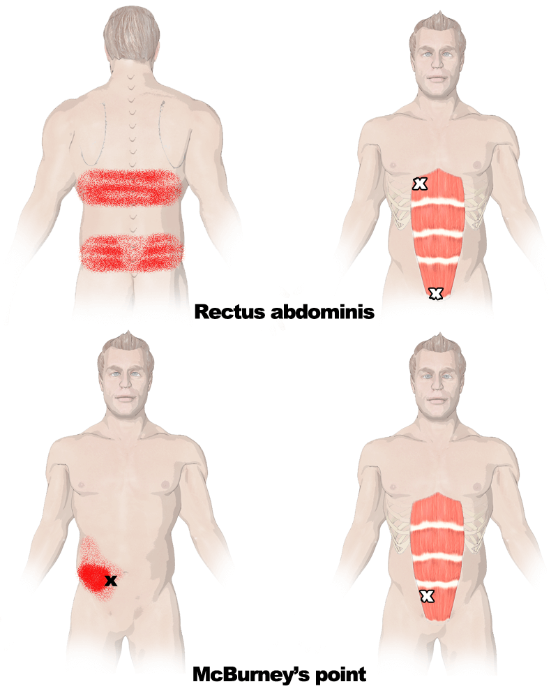 Trigger Points in the Rectus Abdominis Muscle