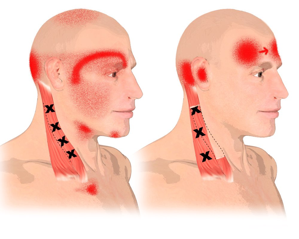 Trigger Points in the Sternocleidomastoid Muscle