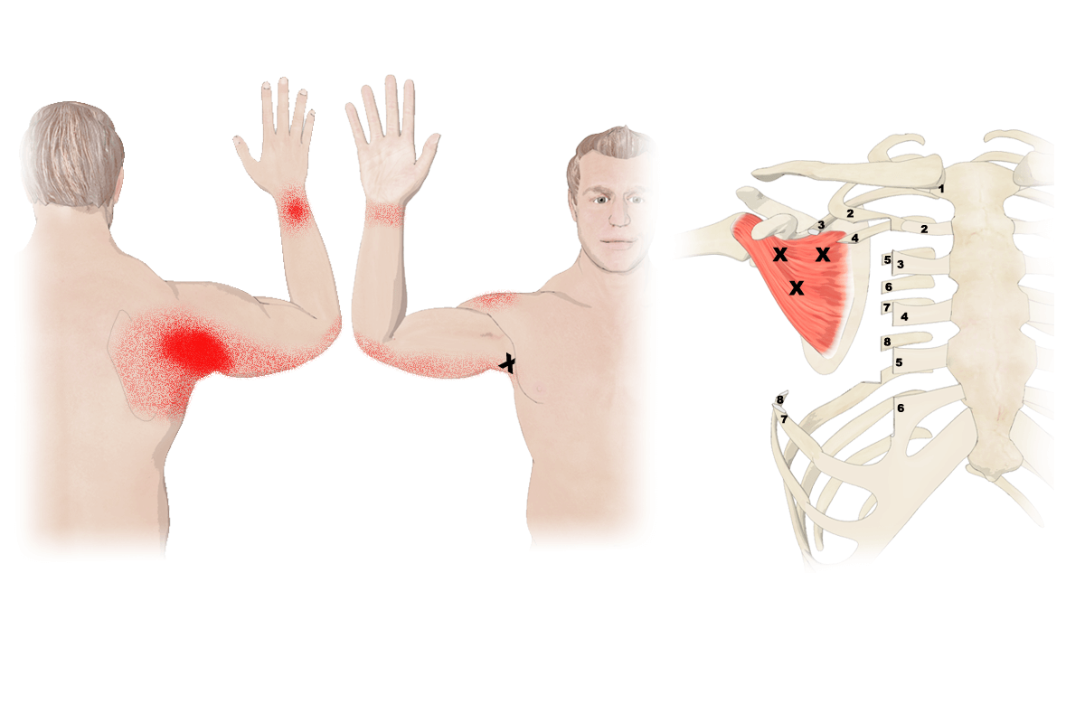 Trigger Points in Subscapularis Muscle