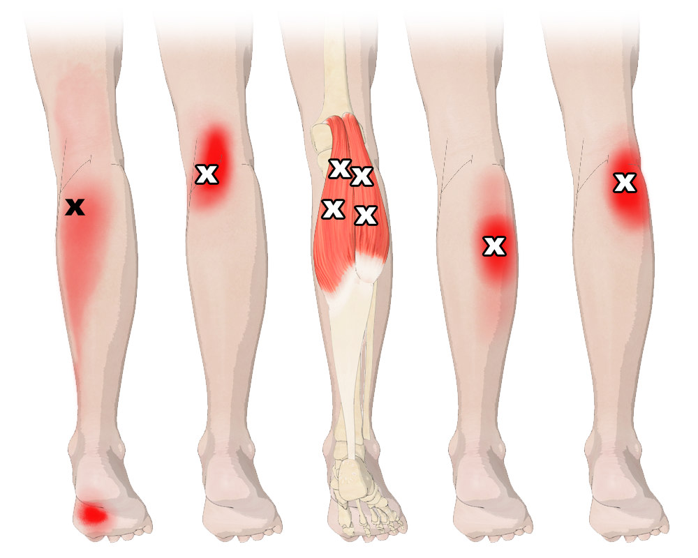 Trigger Points in the Gastrocnemius Muscles
