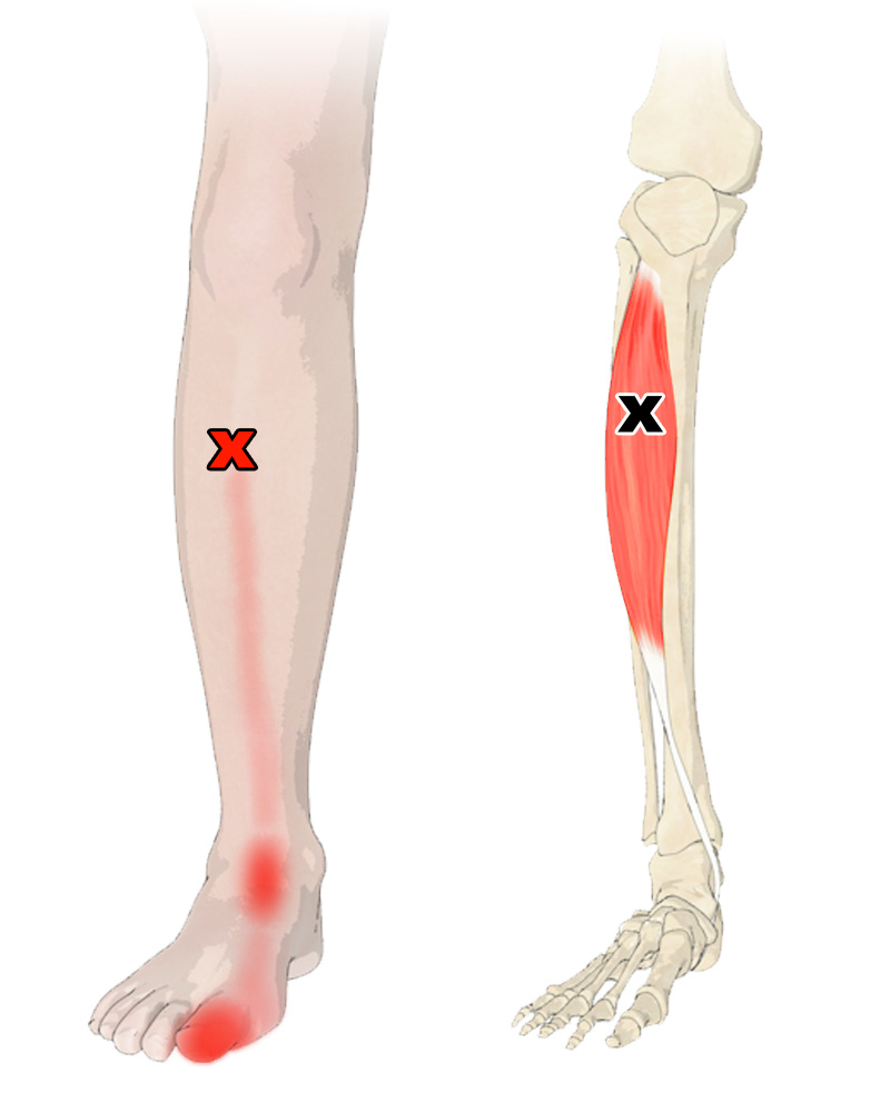Trigger Points in the Tibialis Anterior Muscle