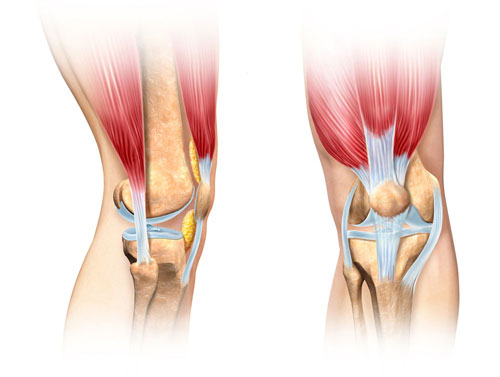 Knee Joint With Quadriceps Attachment