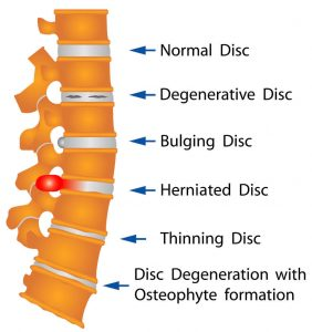 Disc Dysfunction