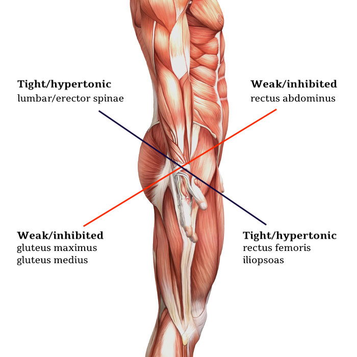 Lower Crossed Syndrome Pattern