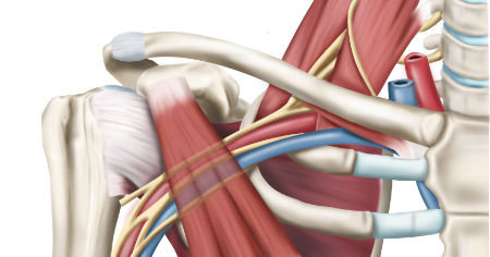 "Featured image for ""What Is Thoracic Outlet Syndrome?"""